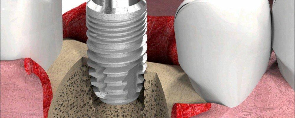 Verbesserung von Zahnimplantaten